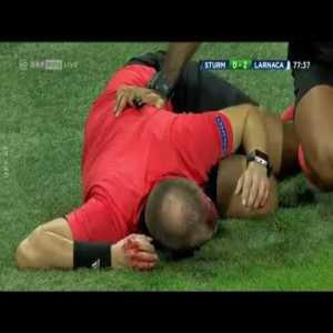 Assistant referee busted open by thrown beer cup