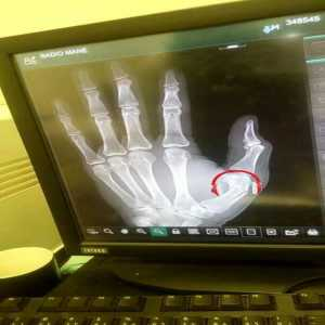 Sadio Mane has broken this left thumb in training with Senegal. Expected to miss match vs. HUD