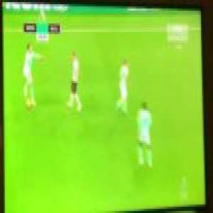 Adam Smith (Bournemouth) bizarre injury vs Newcastle United