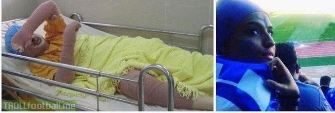 Sahar Khodayari , also known as #bluegirl, set herself on fire recently in protest of her trial for trying to enter a soccer stadium dressed like a man. It's the only way women in Iran can watch soccer. She died yesterday for a right you take for granted.