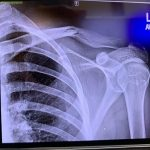 Broke my clavicle a day before varsity soccer season (see replies)